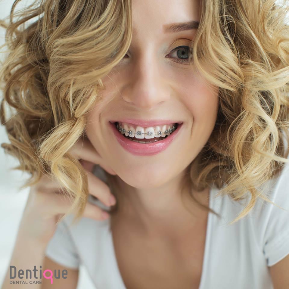 ดัดฟันก็ยิ้มได้อย่างสวยงาม